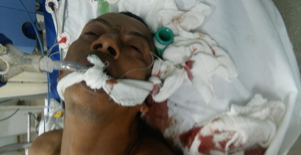 Homem que foi espancado e que ficou hospitalizado mais de 2 meses em UTI pede ajuda; ele está numa cadeira de rodas